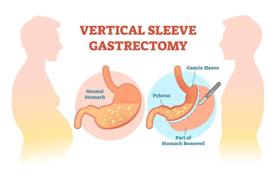 gastrectomie